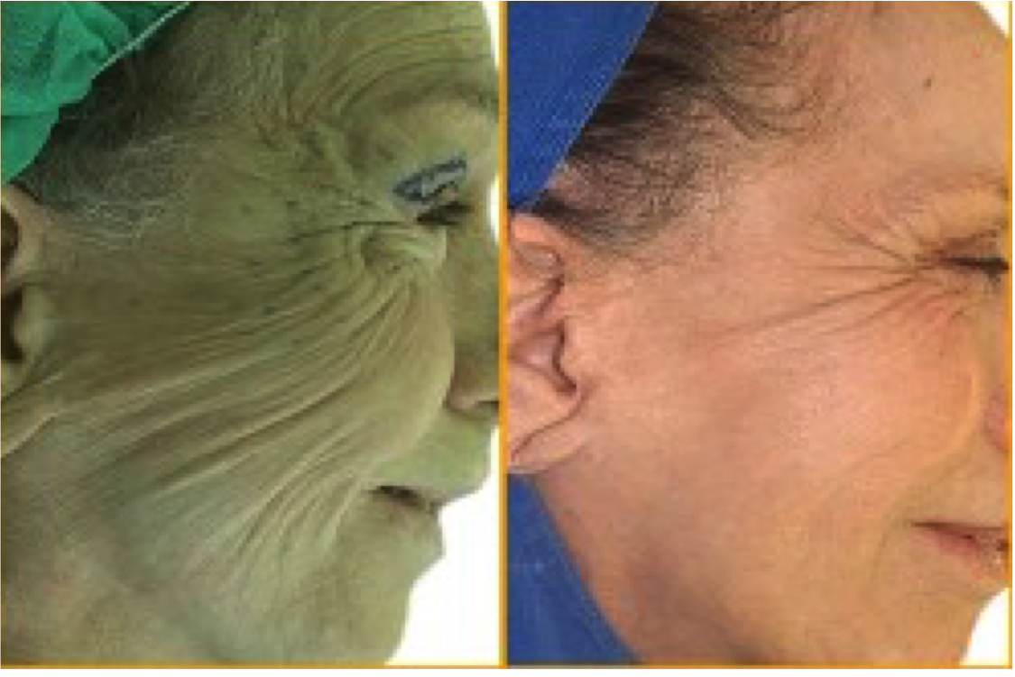 facelift endopeel